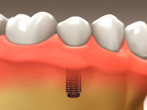 Dental Implants - Scarborough Dentist - Dr. Sara Razmavar - Highland Creek Dental - Illustration 3