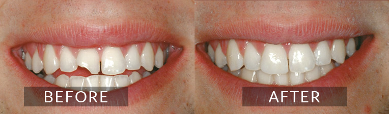 Smile Gallery - Scarborough Dentist - Cosmetic Bonding