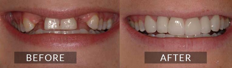 Smile Gallery - Scarborough Dentist -