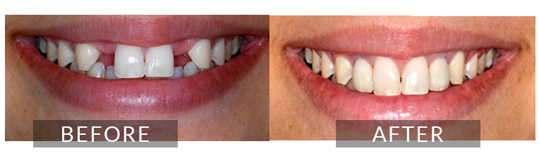 Smile Gallery - Scarborough Dentist - Implants