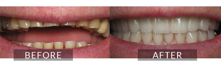 Smile Gallery - Scarborough dentist - Porcelain Veneers
