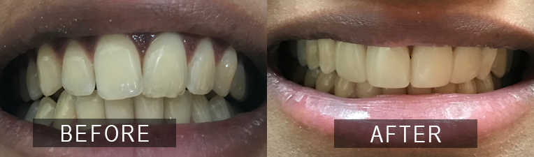 Smile Gallery - Scarborough Dentist - Composite Veneers