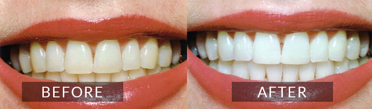 Smile Gallery - Scarborough Dentist - Teeth Whitening