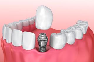 dental-implants-blurb-320x213l
