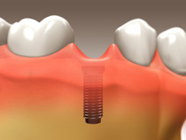 Dental Implants - Scarborough Dentist - Dr. Sara Razmavar - Highland Creek Dental - Illustration 4