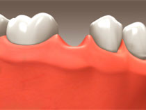 Dental Implants - Scarborough Dentist - Dr. Sara Razmavar - Highland Creek Dental - Illustaration 1
