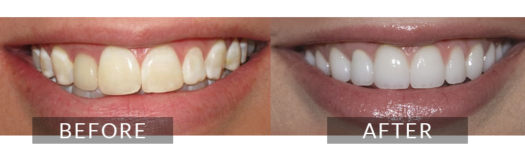 Smile Gallery - Scarborough Dentist - Dental Crown