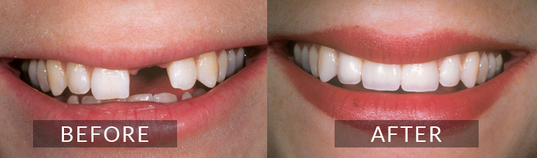 Smile Gallery - Scarborough Dentist - Dental Implants
