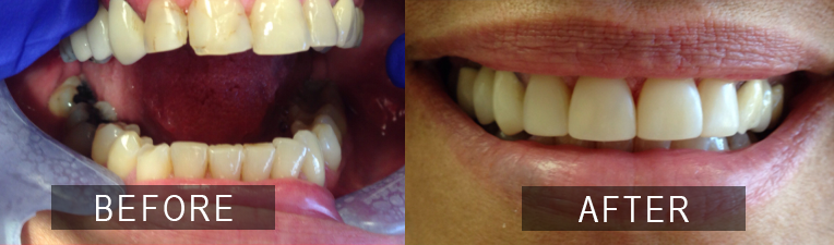 Smile Gallery - Scarborough Dentist - Smile Makeover